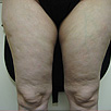 Cellulite & Unwanted Fat - Before