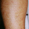 Hair Removal - After