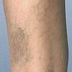 Leg Veins - Before