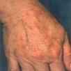 Removing Freckles - After