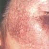 Removing Freckles - Before