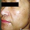 Skin Rejuvenation - After