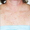Skin Rejuvenation - Before