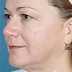 Skin Tightening Refirme - After
