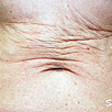 Skin Tightening Refirme - Before