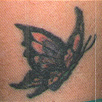 Tattoo Removal - Before