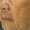 Wrinkles - Before