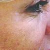 Wrinkles Before